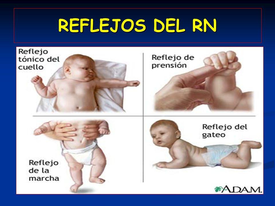 REFLEJOS DEL RN