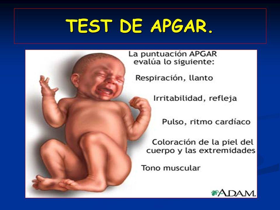 TEST DE APGAR.