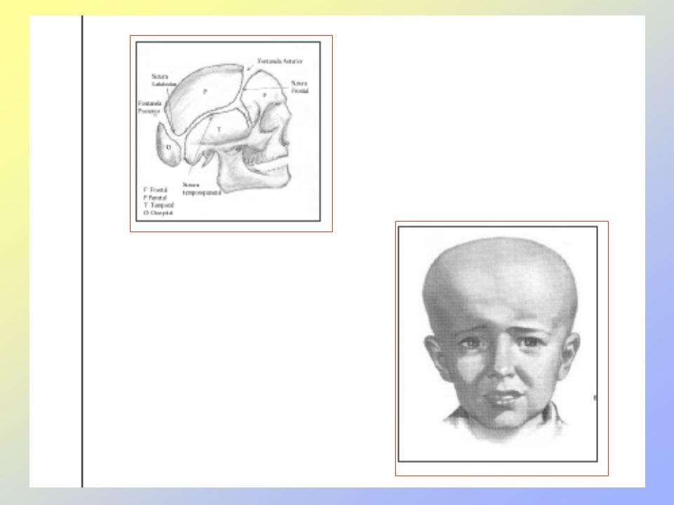 VACUNAEDADPROTEGDOSIVIAREACCION Antipolio Pentava- lente 18 meses (1°ref) POLIO Difteria, tétano, tos convulsiva, inluenza, Hepatiti B 2 got 0.5 Oral IM deltoides enrojecimiento, dolor e inflamación, Fiebre las primeras 48 a 72 horas DPT 4 años (2° ref) Difteria, tétano, tos convulsiv 0,5 mlIM deltoides enrojecimiento, dolor e inflamación, Fiebre las primeras 48 a 72 horas