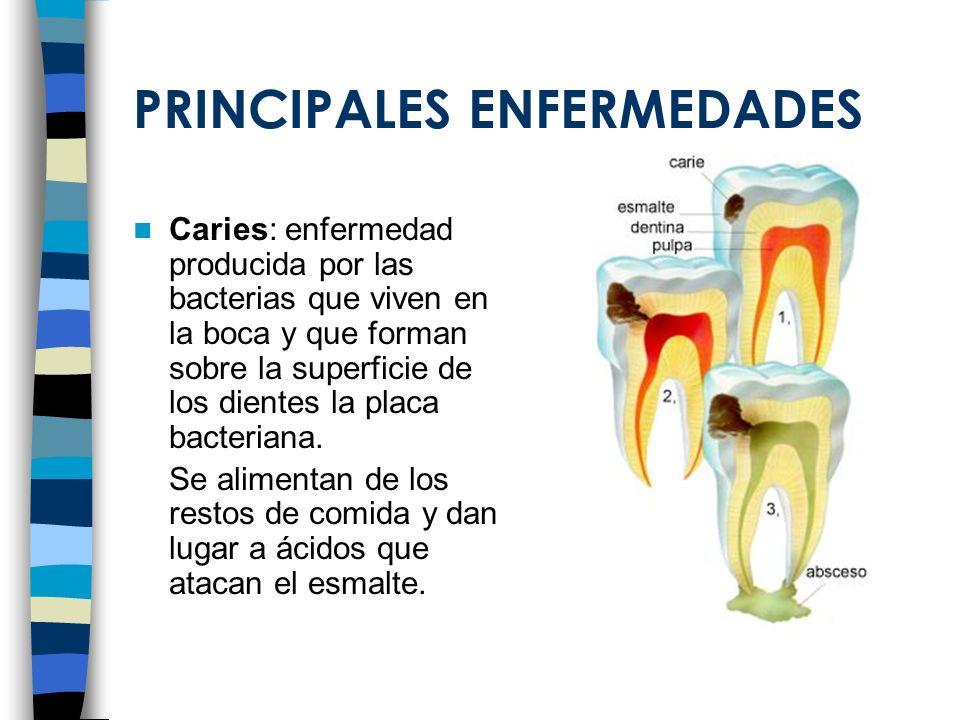 PRINCIPALES ENFERMEDADES Caries: enfermedad producida por las bacterias que viven en la boca y que forman sobre la superficie de los dientes la placa