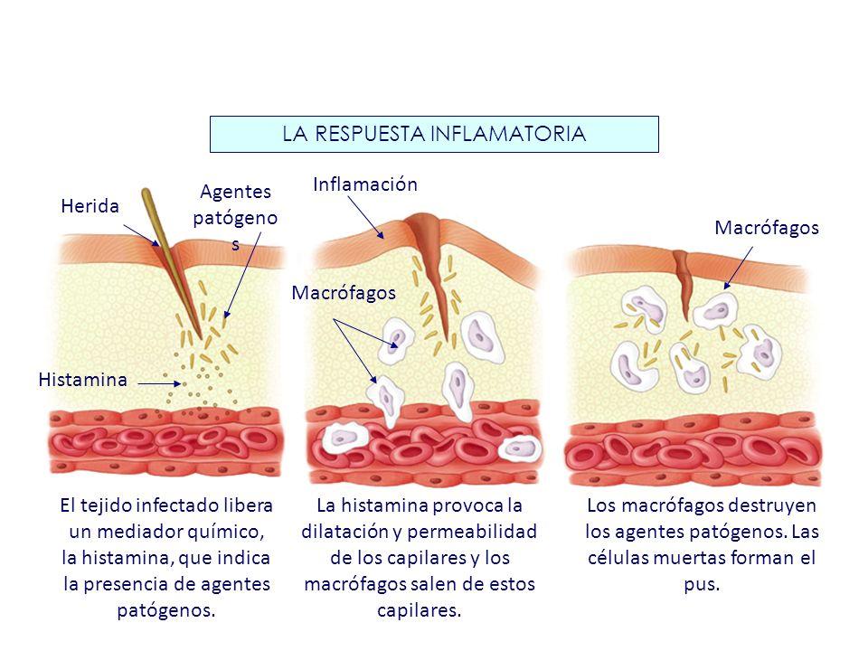 LA RESPUESTA INFLAMATORIA Macrófagos Inflamación Herida Agentes patógeno s Histamina Macrófagos El tejido infectado libera un mediador químico, la his