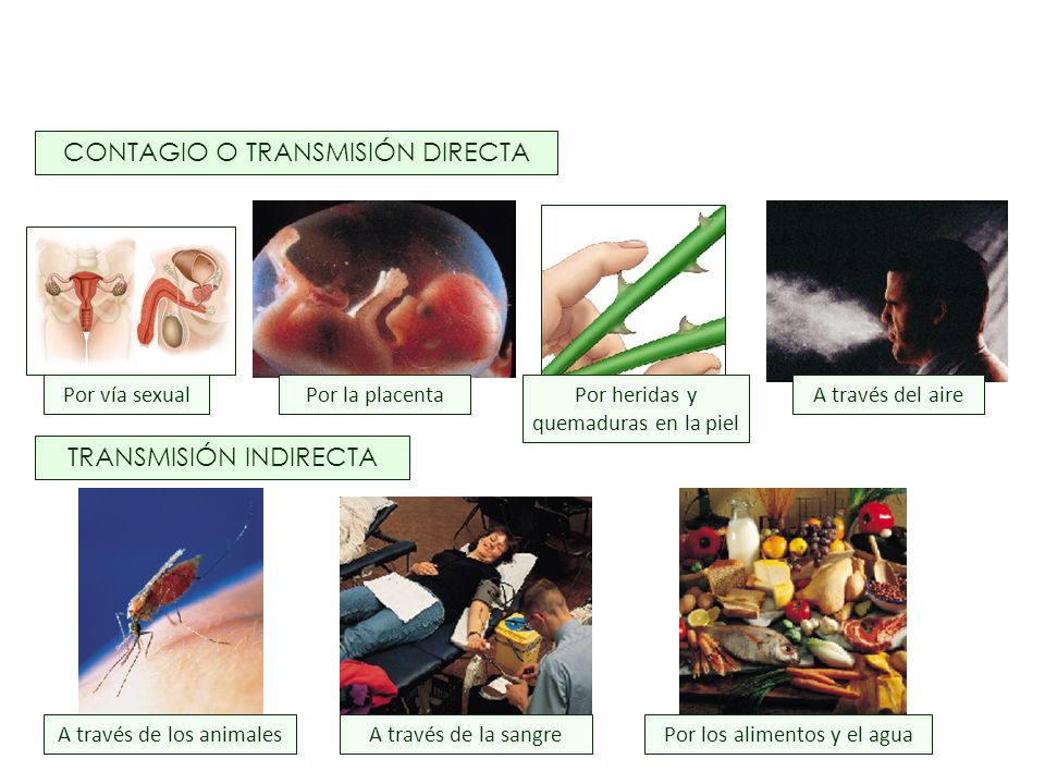 CONTAGIO O TRANSMISIÓN DIRECTA TRANSMISIÓN INDIRECTA Por vía sexualPor heridas y quemaduras en la piel A través del aire A través de los animalesPor l