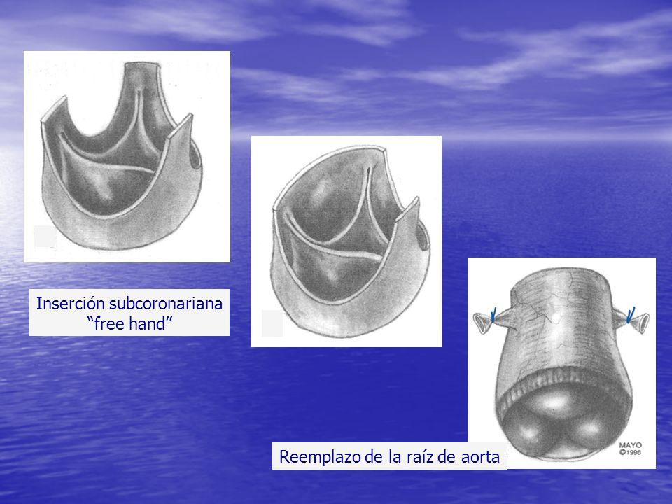 Inserción subcoronariana free hand Reemplazo de la raíz de aorta