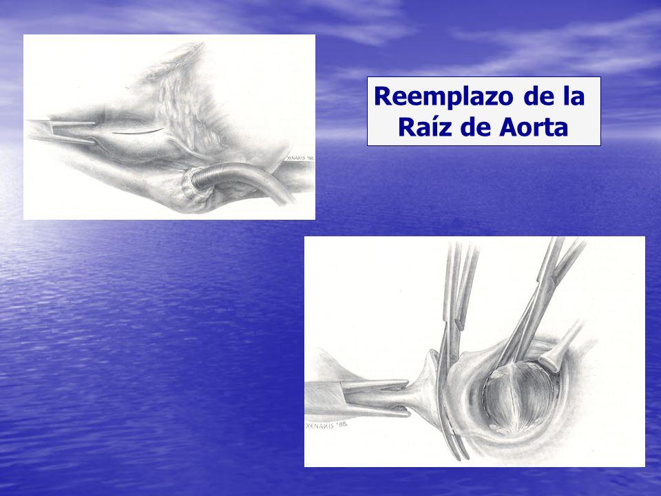 Reemplazo de la Raíz de Aorta