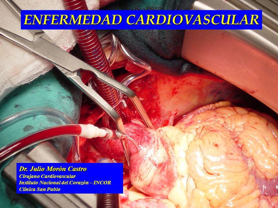 Dr. Julio Morón Castro Cirujano Cardiovascular Instituto Nacional del Corazón – INCOR Clinica San Pablo ENFERMEDAD CARDIOVASCULAR