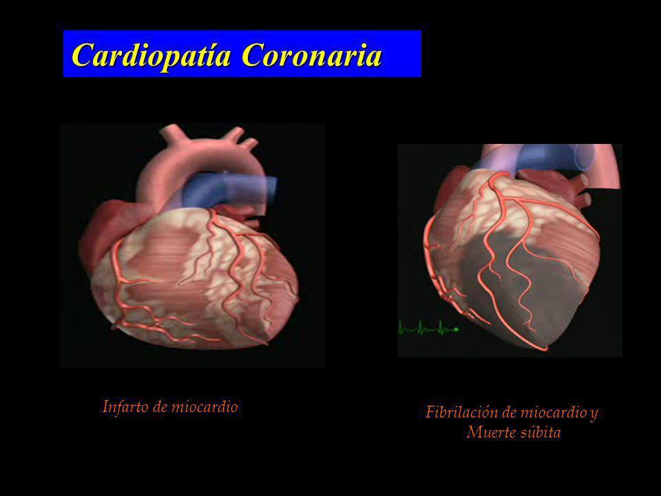 Cardiopatía Coronaria Infarto de miocardio Fibrilación de miocardio y Muerte súbita