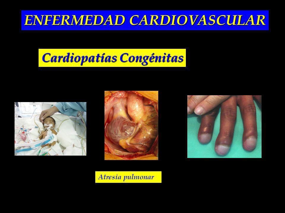 ENFERMEDAD CARDIOVASCULAR Cardiopatías Congénitas Atresia pulmonar