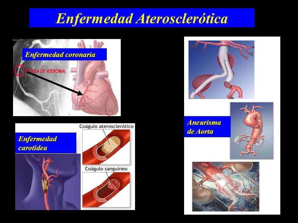 Enfermedad Aterosclerótica Aneurisma de Aorta Enfermedad coronaria Enfermedadcarotídea