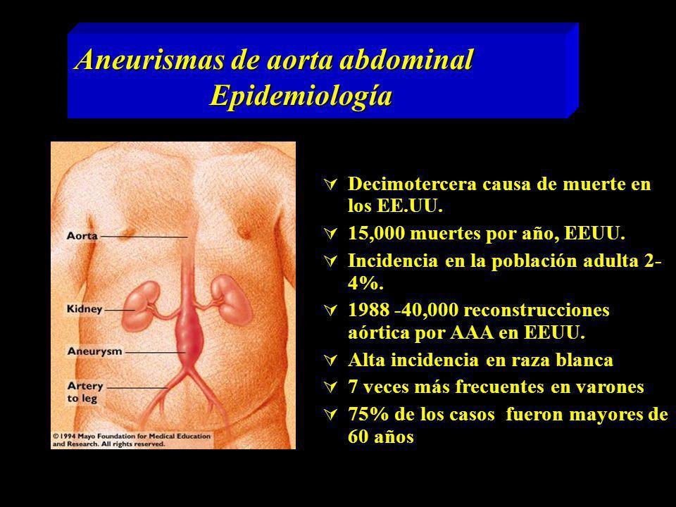 Aneurismas de aorta abdominal Epidemiología Decimotercera causa de muerte en los EE.UU. 15,000 muertes por año, EEUU. Incidencia en la población adult