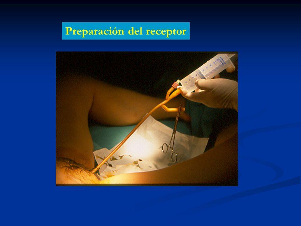 Preparación del receptor