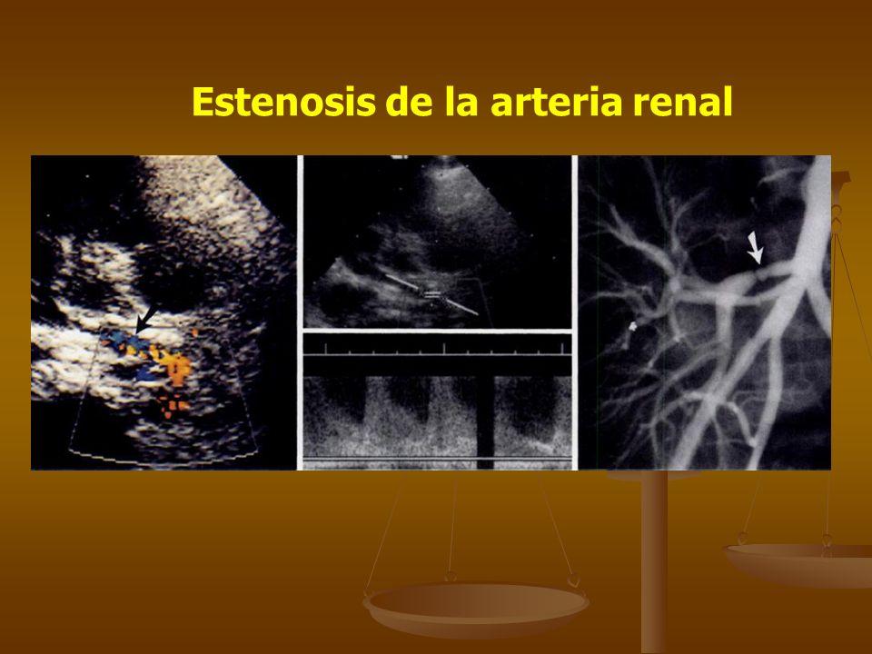 Estenosis de la arteria renal