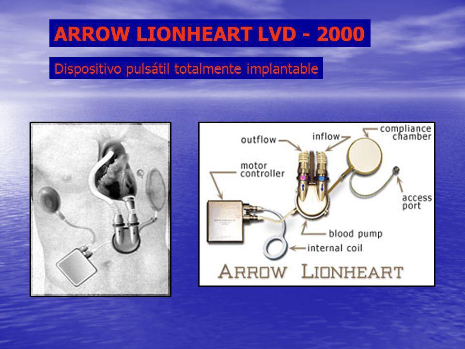Dispositivo pulsátil totalmente implantable ARROW LIONHEART LVD - 2000