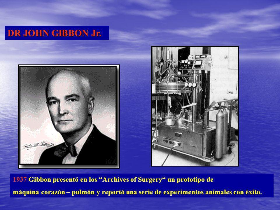 DR JOHN GIBBON Jr. 1937 Gibbon presentó en los Archives of Surgery un prototipo de máquina corazón – pulmón y reportó una serie de experimentos animal