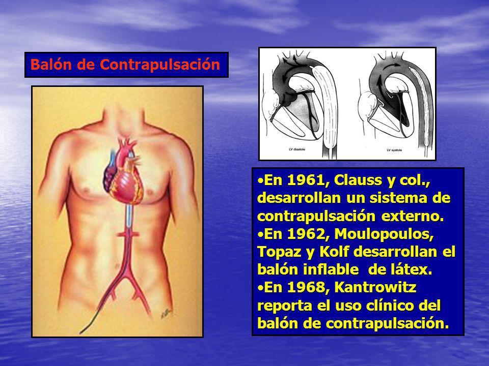 En 1961, Clauss y col., desarrollan un sistema de contrapulsación externo.En 1961, Clauss y col., desarrollan un sistema de contrapulsación externo. E