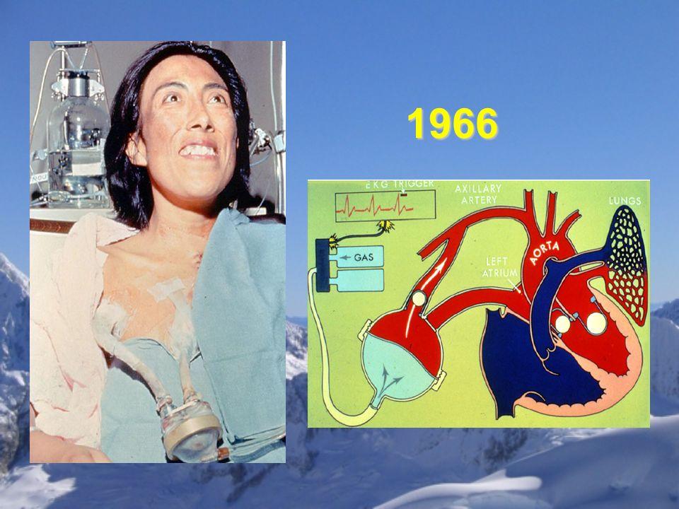 HEARTMATE II Thoratec Corp, Pleasanton, CA.Implantado en julio del 2000 en Israel.