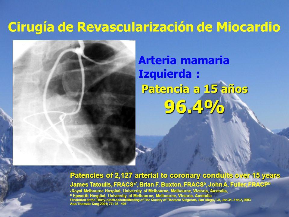 Cirugía de Revascularización de Miocardio Arteria mamaria Izquierda : Patencia a 15 años 96.4% Patencies of 2,127 arterial to coronary conduits over 1