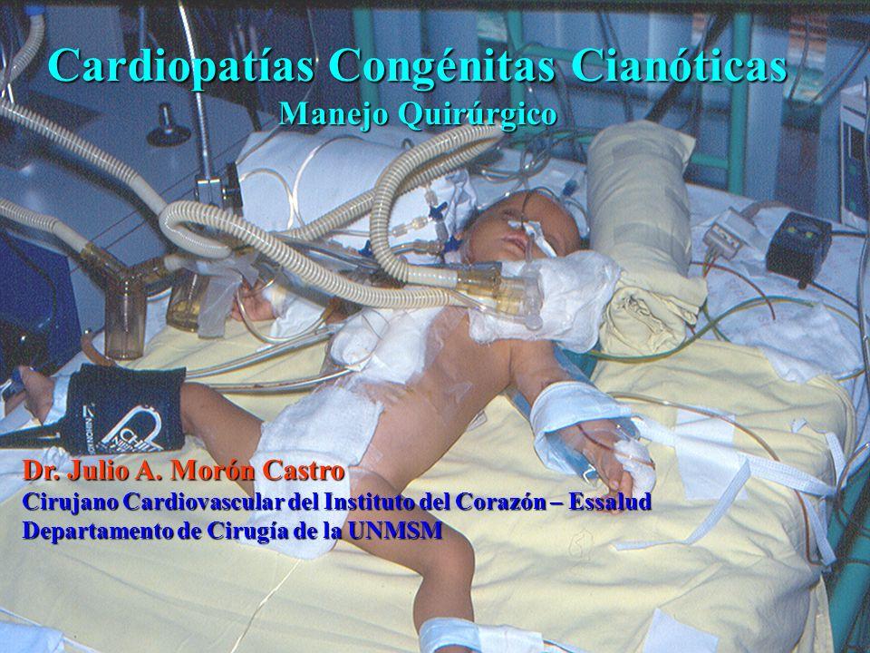 Cardiopatías Congénitas Cianóticas Manejo Quirúrgico Dr. Julio A. Morón Castro Cirujano Cardiovascular del Instituto del Corazón – Essalud Departament
