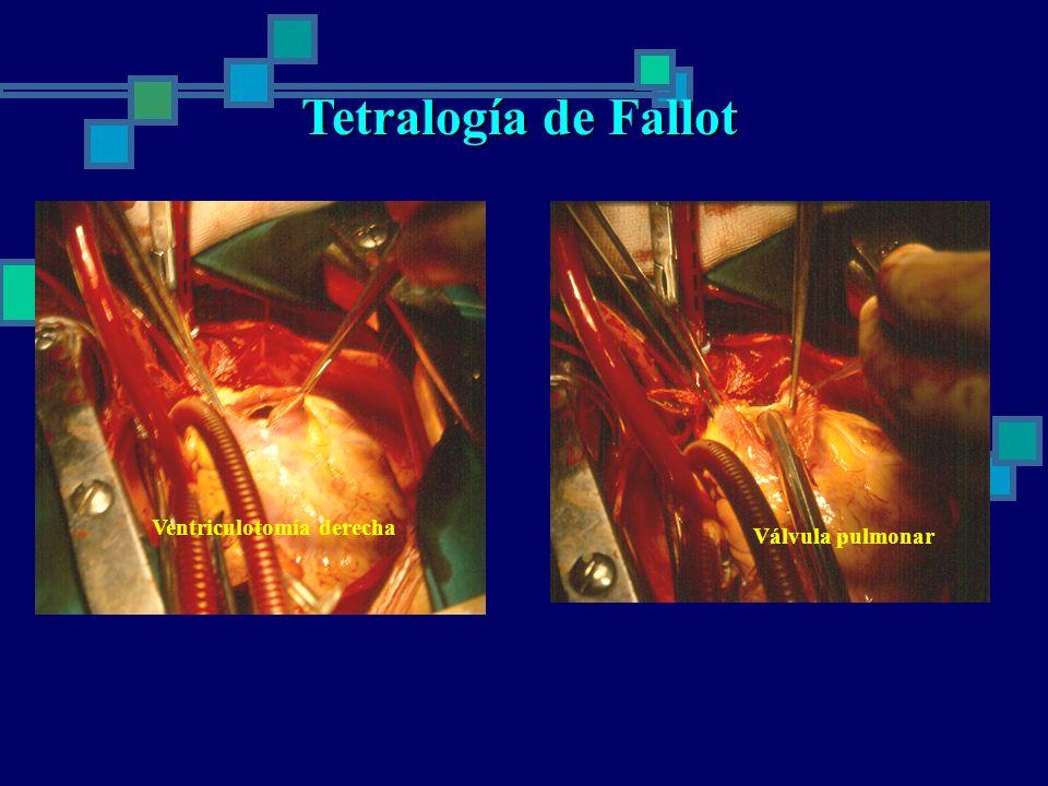 Tetralogía de Fallot Válvula pulmonar Ventriculotomía derecha
