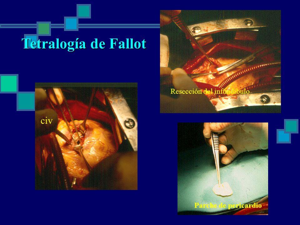 civ Resección del infúndibulo Parche de pericardio Tetralogía de Fallot