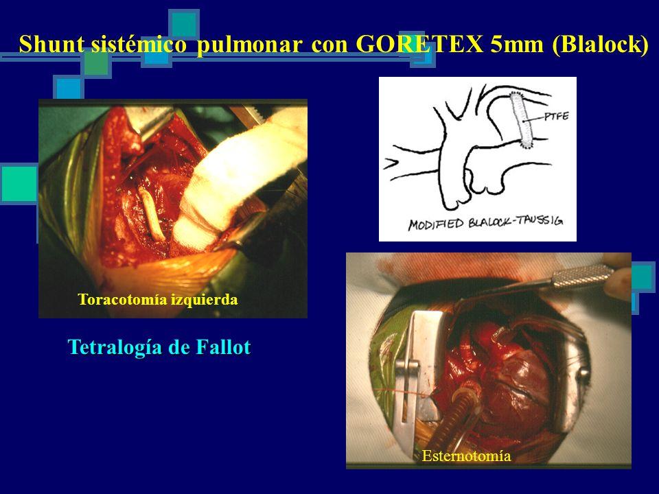Shunt sistémico pulmonar con GORETEX 5mm (Blalock) Tetralogía de Fallot TGA + CIV + EP Toracotomía izquierda Esternotomía