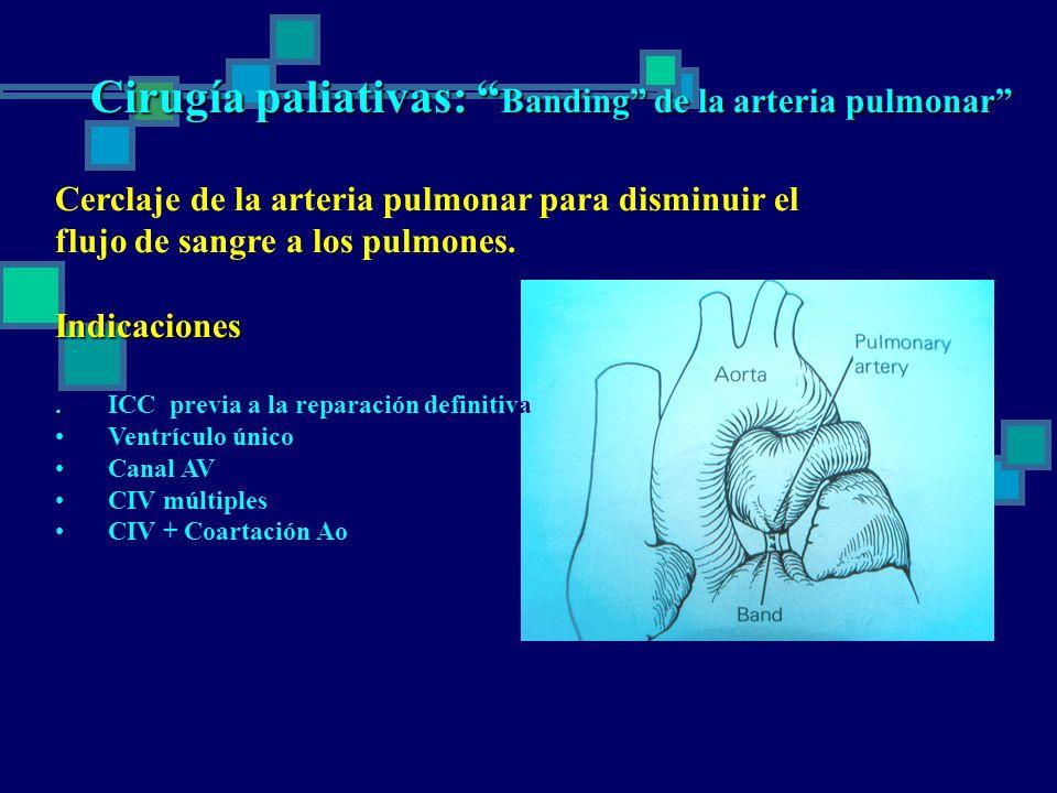 Cirugía paliativas: Banding de la arteria pulmonar Cerclaje de la arteria pulmonar para disminuir el flujo de sangre a los pulmones.Indicaciones..ICC