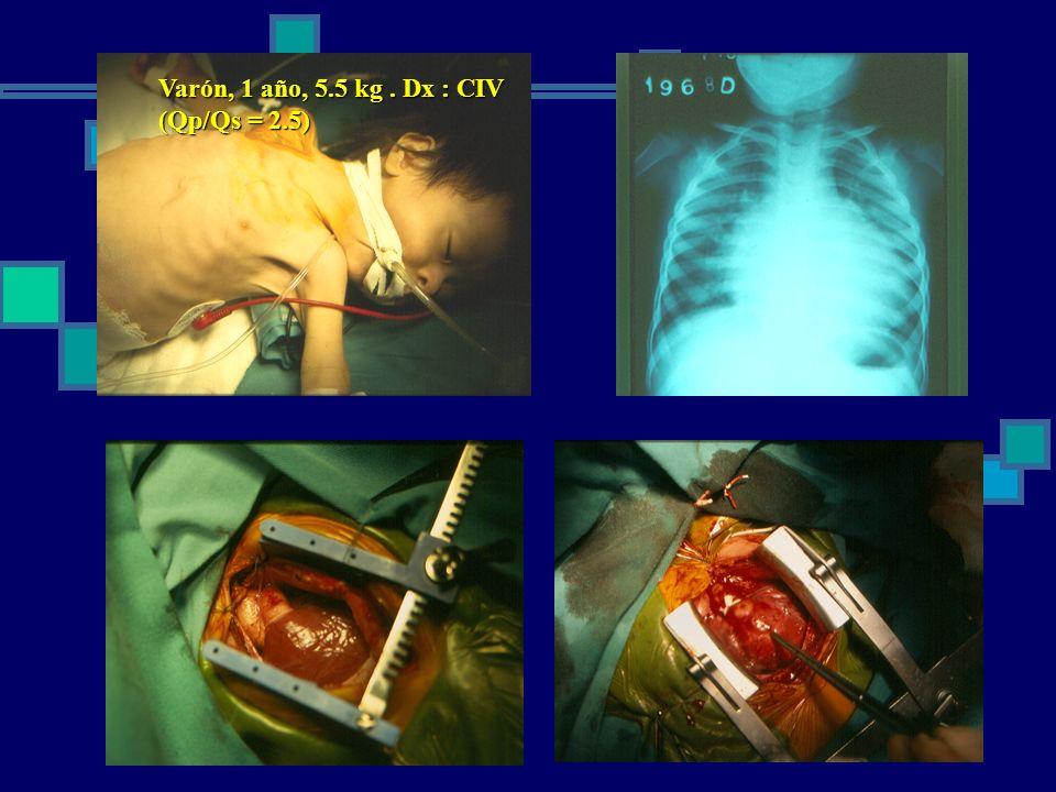Cirugía paliativas: Glenn bidireccional (anastomosis cavo pulmonar bidireccional) Anastomosis de la vena cava superior a la arteria pulmonar derecha en forma término lateral.