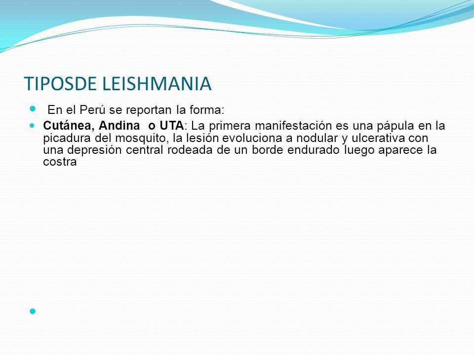 TIPOSDE LEISHMANIA En el Perú se reportan la forma: Cutánea, Andina o UTA: La primera manifestación es una pápula en la picadura del mosquito, la lesi