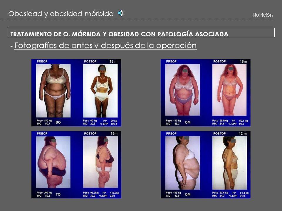 Obesidad y obesidad mórbida Nutrición Resultados de la cirugía - Se puede llegar a perder más del 75 % (e incluso el 100%) del sobrepeso PESO IDEAL. D