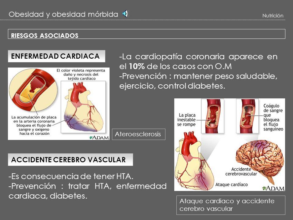 Obesidad y obesidad mórbida Nutrición RIESGOS ASOCIADOS 2 – Cardiovasculares : HIPERTENSIÓN -La frecuencia de tener hipertensión arterial (HTA) en O.M