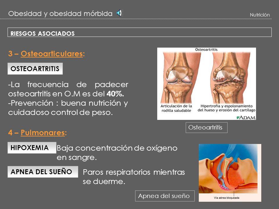 Obesidad y obesidad mórbida Nutrición RIESGOS ASOCIADOS ENFERMEDAD CARDIACA -La cardiopatía coronaria aparece en el 10% de los casos con O.M -Prevenci