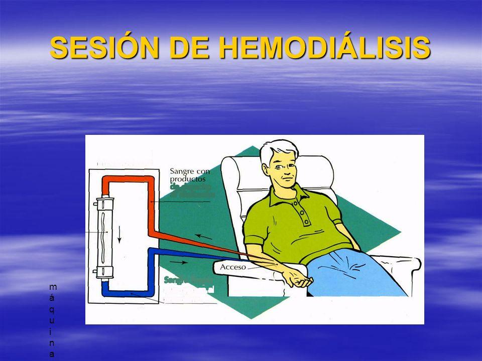 CUIDADOS DE ENFERMERÍA EN HD Preparación de la sala Preparación de la sala Preparación del material Preparación del material Montaje y cebado del circuito de HD.