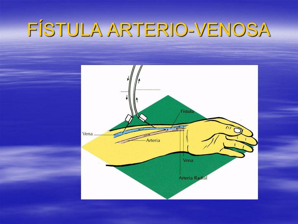 CUIDADOS DE ENFERMERÍA UNA VEZ REALIZADA FAVI Primeras 48h mantener el miembro elevado, ya que en el acto operatorio pueden producirse hematomas y el brazo estar hinchado.