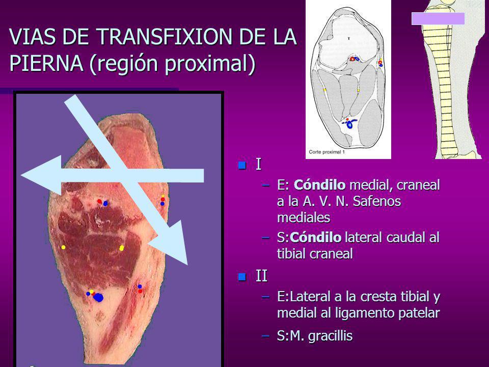 VIAS DE TRANSFIXION DE LA PIERNA (región proximal) n I –E: Cara medial de la tibia –S: M.