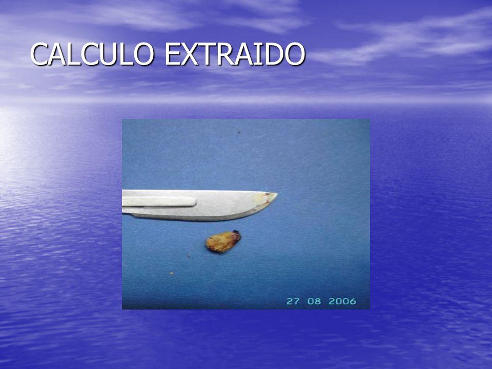 CALCULO EXTRAIDO