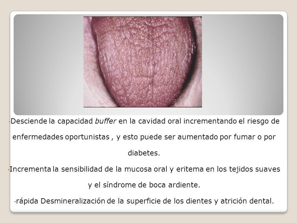 Diagnstico El diagnostico se obtiene por la historia clínica de los pacientes y el examen de la cavidad oral así como de una sialometria que mide el flujo y la velocidad de la saliva.