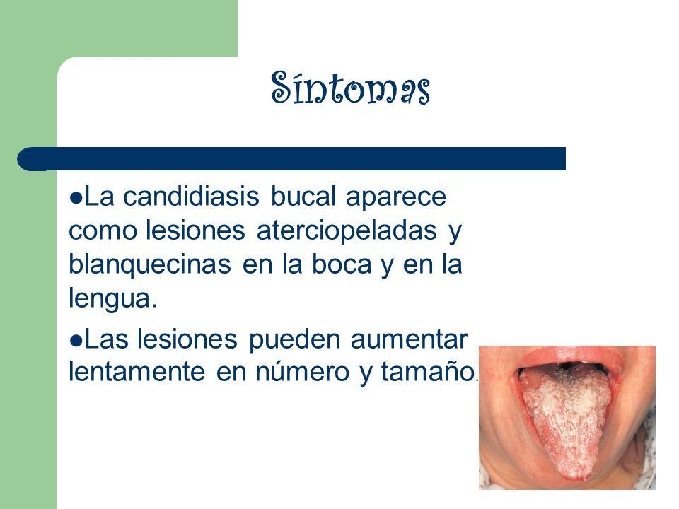 Síntomas La candidiasis bucal aparece como lesiones aterciopeladas y blanquecinas en la boca y en la lengua.
