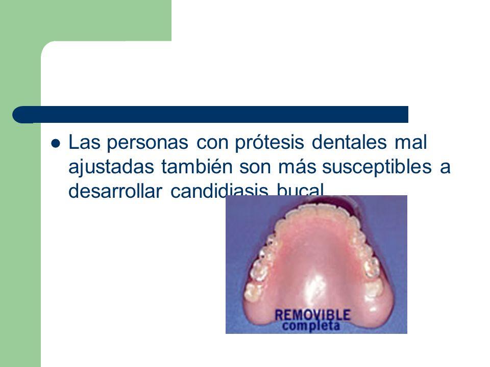 Las personas con prótesis dentales mal ajustadas también son más susceptibles a desarrollar candidiasis bucal.