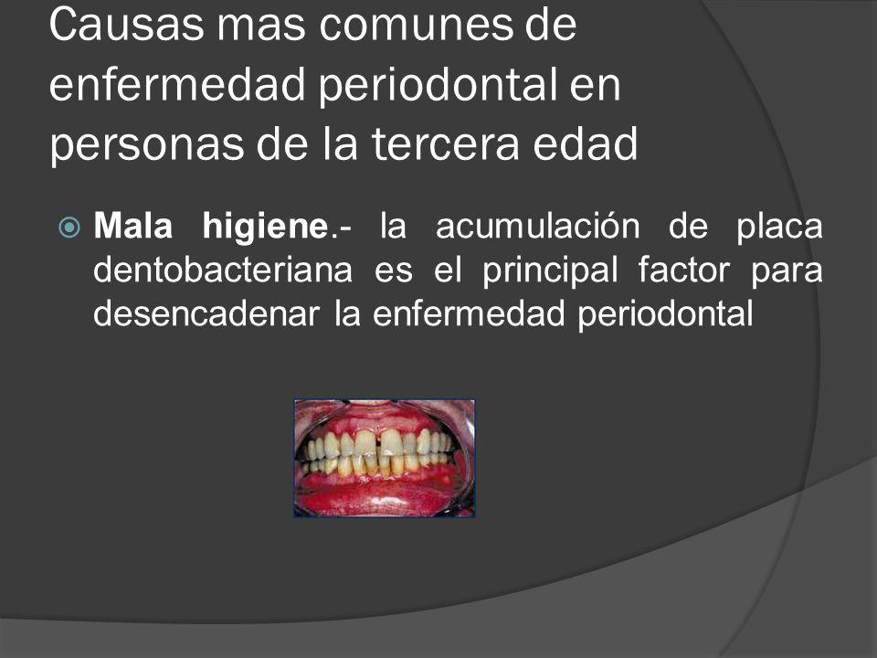 Causas mas comunes de enfermedad periodontal en personas de la tercera edad Mala higiene.- la acumulación de placa dentobacteriana es el principal fac