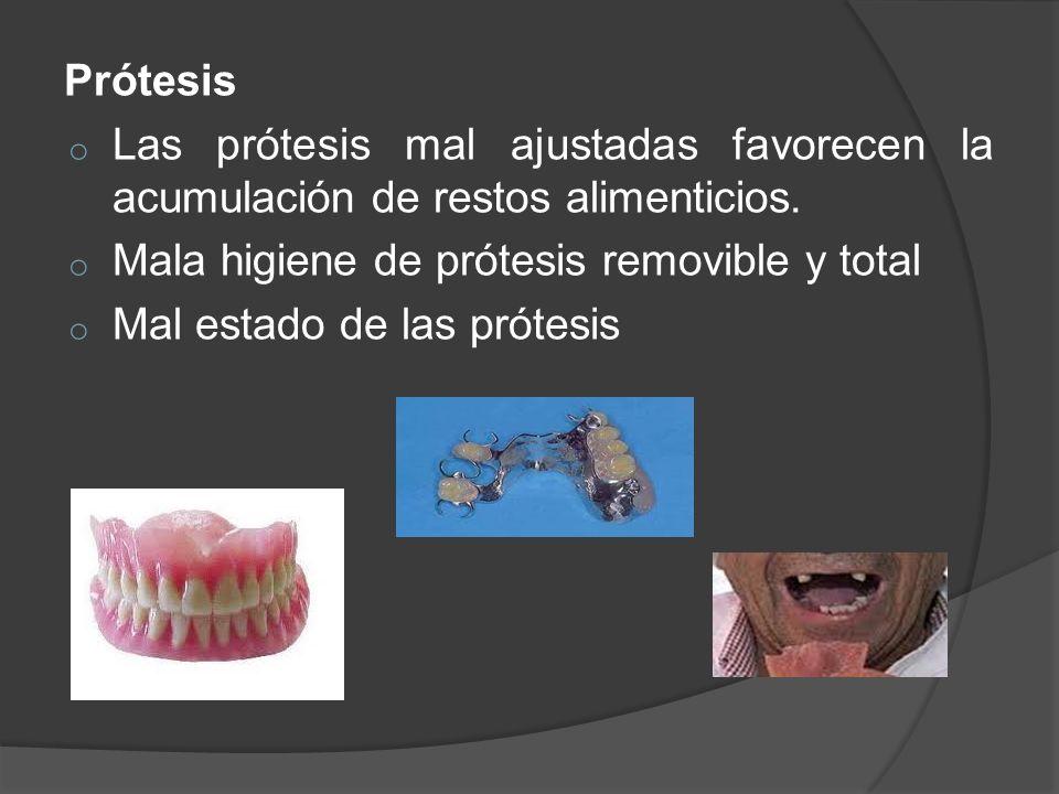 Prótesis o Las prótesis mal ajustadas favorecen la acumulación de restos alimenticios. o Mala higiene de prótesis removible y total o Mal estado de la
