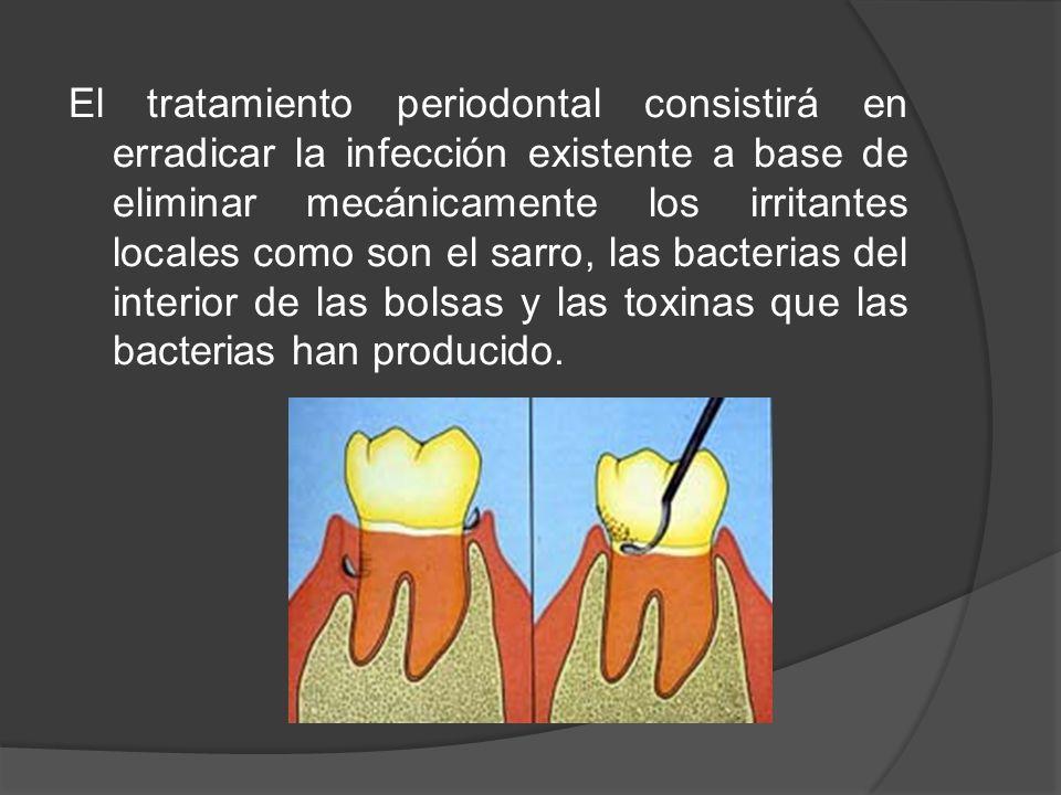 El tratamiento periodontal consistirá en erradicar la infección existente a base de eliminar mecánicamente los irritantes locales como son el sarro, l