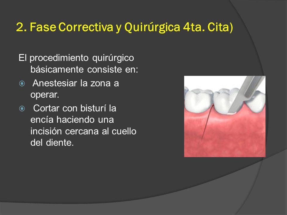 2. Fase Correctiva y Quirúrgica 4ta. Cita) El procedimiento quirúrgico básicamente consiste en: Anestesiar la zona a operar. Cortar con bisturí la enc