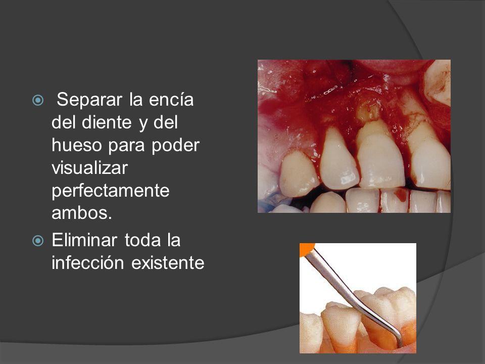 Separar la encía del diente y del hueso para poder visualizar perfectamente ambos. Eliminar toda la infección existente