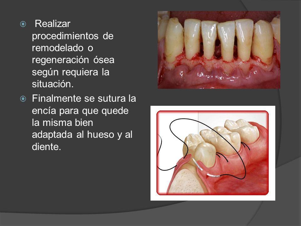 Realizar procedimientos de remodelado o regeneración ósea según requiera la situación. Finalmente se sutura la encía para que quede la misma bien adap