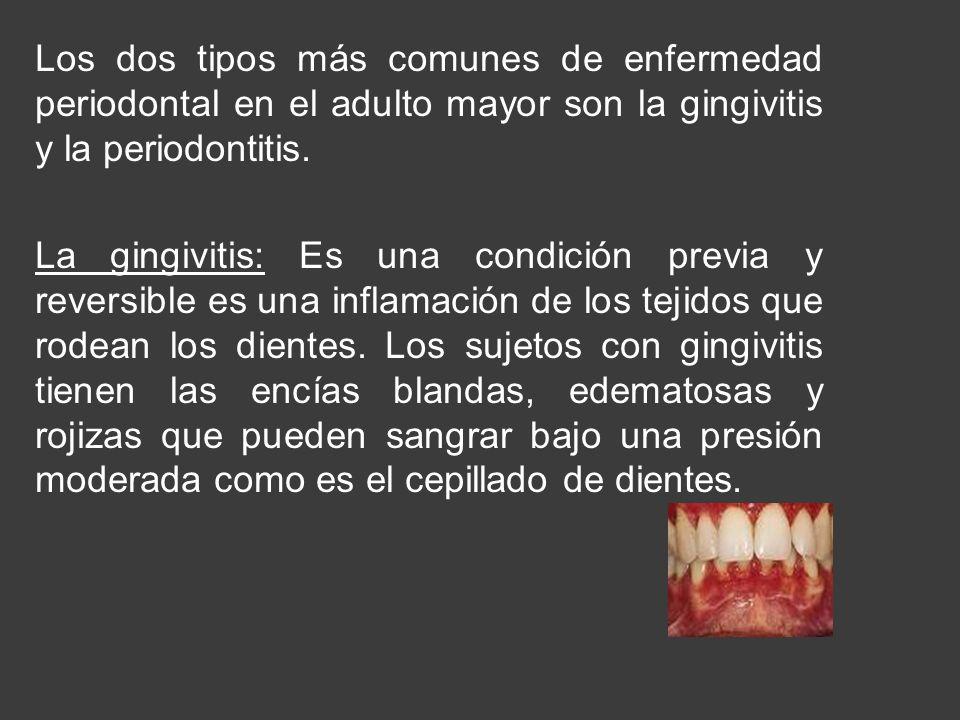 Los dos tipos más comunes de enfermedad periodontal en el adulto mayor son la gingivitis y la periodontitis. La gingivitis: Es una condición previa y