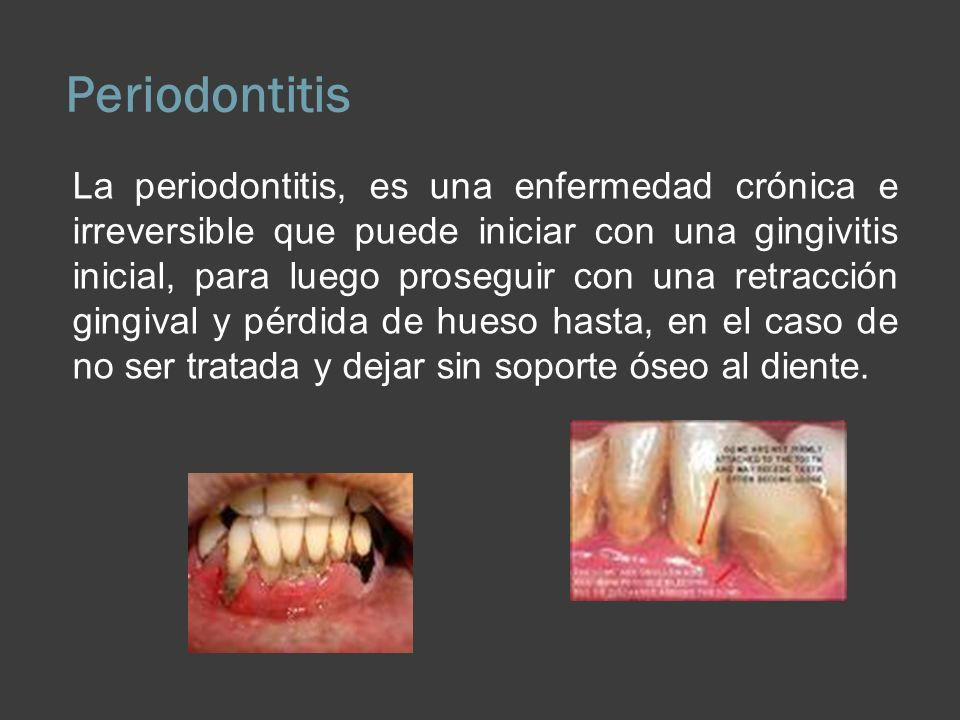 Periodontitis La periodontitis, es una enfermedad crónica e irreversible que puede iniciar con una gingivitis inicial, para luego proseguir con una re