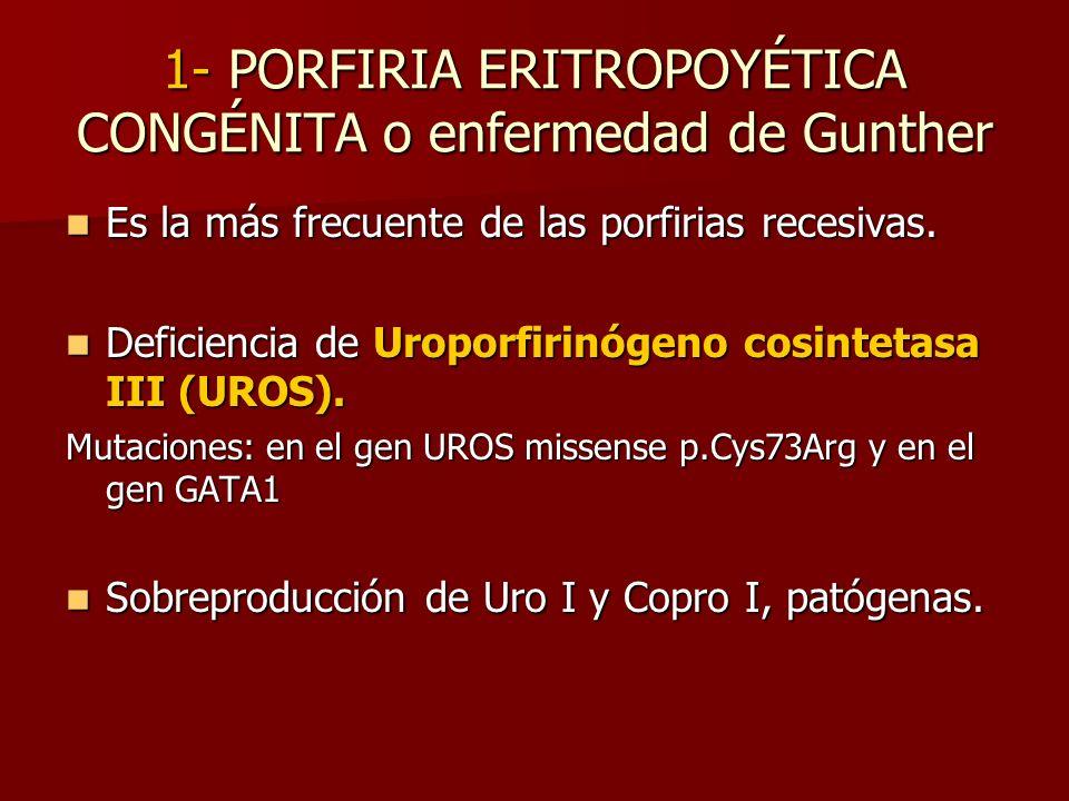 1- PORFIRIA ERITROPOYÉTICA CONGÉNITA o enfermedad de Gunther Es la más frecuente de las porfirias recesivas. Es la más frecuente de las porfirias rece