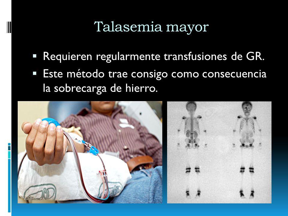Requieren regularmente transfusiones de GR. Este método trae consigo como consecuencia la sobrecarga de hierro.