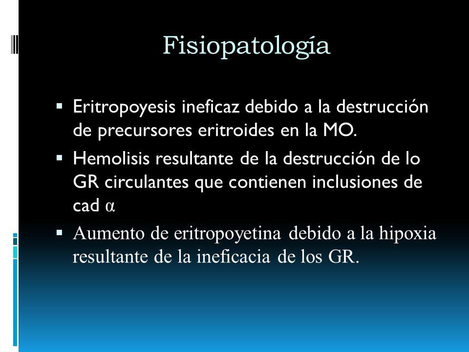 Fisiopatología Eritropoyesis ineficaz debido a la destrucción de precursores eritroides en la MO. Hemolisis resultante de la destrucción de lo GR circ
