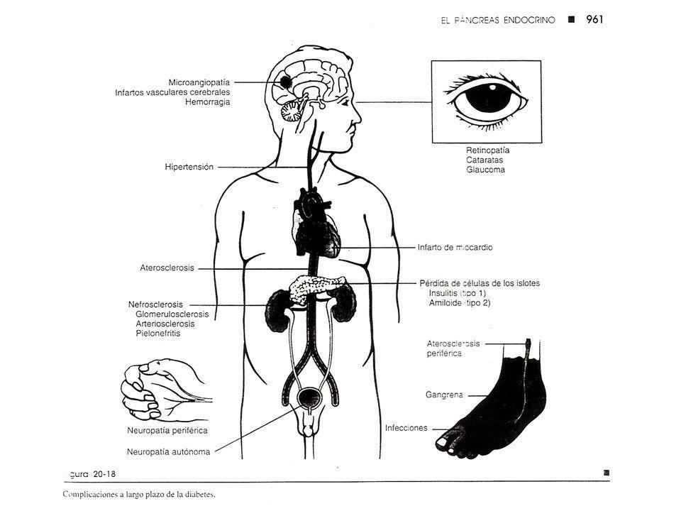 Diabetes Mellitus Síndrome en el que los niveles de insulina son inadecuados para mantener la azúcar sanguínea dentro de niveles normales, debido a: C