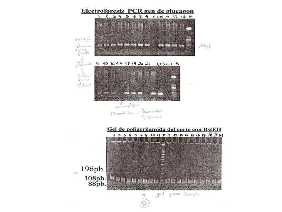 Una mutación missense en el receptor de glucagón asociado con DMNID -La acción del glucagón esta mediada por su receptor que pertenece a la superfamil